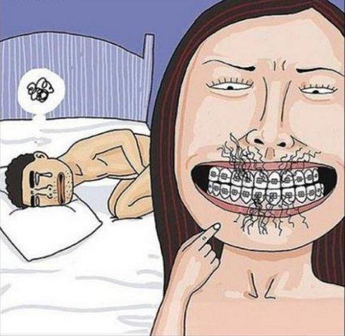 cuidados-pós-aparelho-dentário