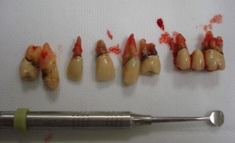 Iatrogenias Odontológicas #2