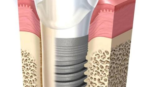 Riscos do Implante Dentário