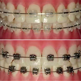 aparelho_ortodontico
