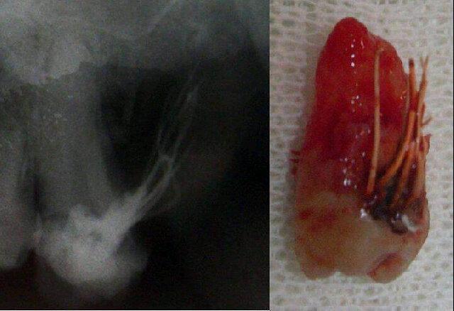 iatrogenia canal trepanado