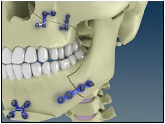 buco-maxilo-facial