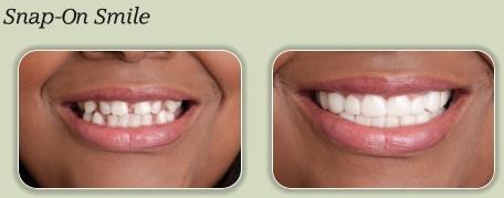 snap-on-smile antes e depois