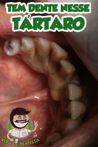 tártaro-dente