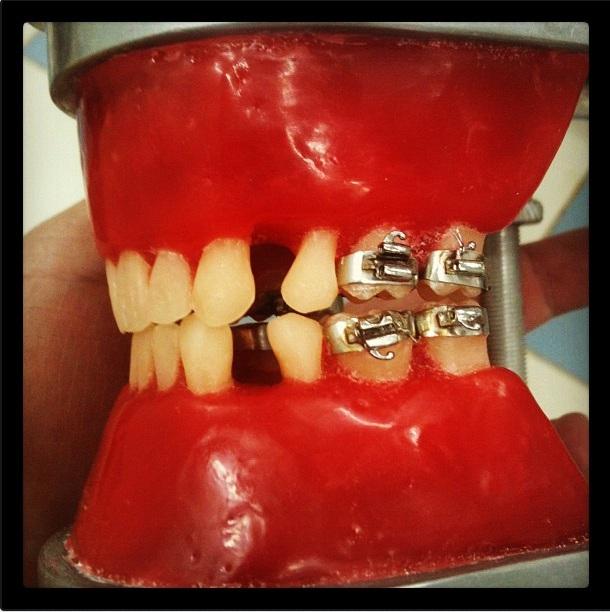Especialização em Ortodontia – A Saga #3