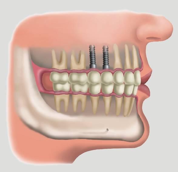 Preço de implante dental