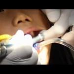 Motorzinho de dentista musical