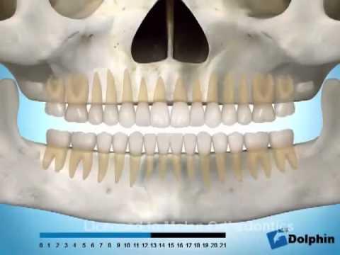 Erupção panorâmica dos dentes