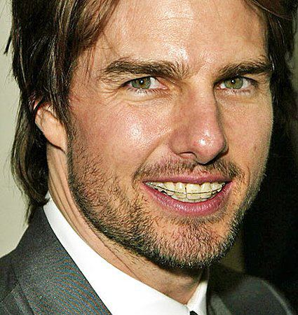 Tom Cruise usando um modelo de autoligado