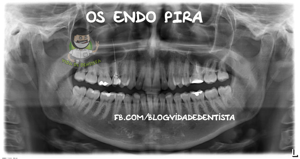 Endodontia Extrema