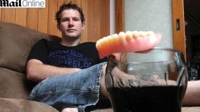 Rapaz de 25 anos perdeu todos os dentes por beber muita Coca-Cola