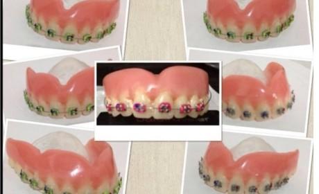 Dentadura com Aparelho