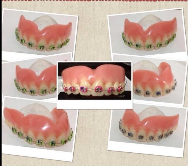 dentadura-aparelho