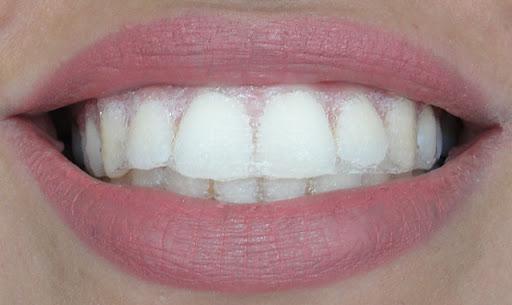 Fitas clareadoras dentais realmente funcionam ???