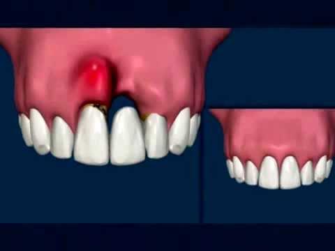 Implantes Dentários x Prótese Fixa Convencional