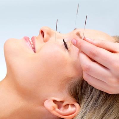 acupuntura_dentista