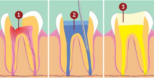 tratamento-de-canal-dente