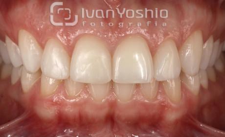 10 dicas para obter uma boa fotografia odontológica