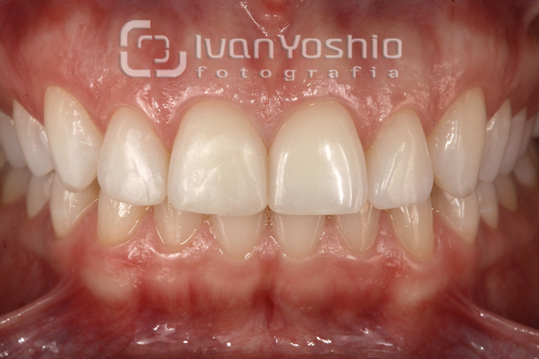 fotografia-odontologica