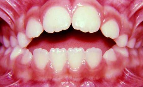 Especialização em Ortodontia – A Saga #15 e #16