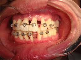Especialização em Ortodontia – A Saga #17 e #18