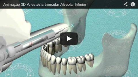 Vídeo 3D – Anestesia do Alveolar Inferior