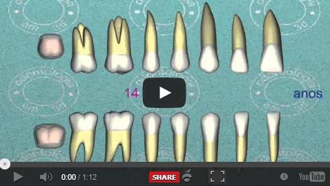 Vídeo 3D – Cronologia do nascimento dos dentes