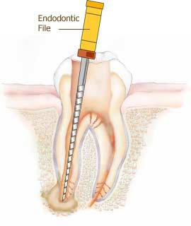 Canal Aberto #1 – Mitos e verdades do tratamento endodôntico