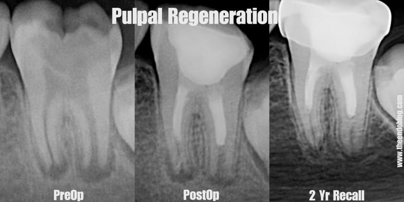 Canal Aberto #4 – Revascularização, a Endodontia do futuro ???