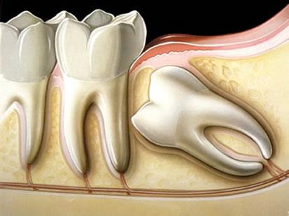 dente-siso