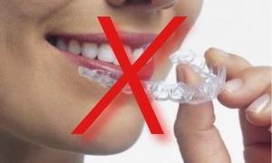 Anvisa quer proibir a venda indiscriminada de clareadores dentais