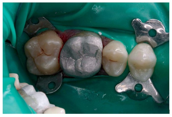 Amálgama dental pode estar com os dias contados