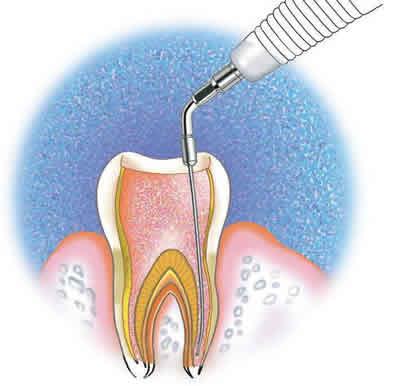 Canal Aberto #7 – Uso do ultrassom na endodontia