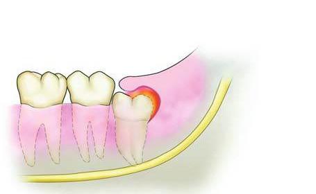 Odontosecção #5 – Complicações de uma pericoronarite
