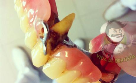 Perfeccionismo Odontológico – A Receita do Desastre