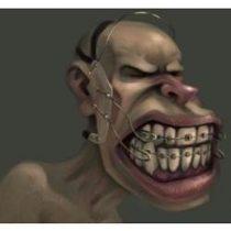 """Ortodontia – O """"X"""" da Questão #1- Diagnóstico e Planejamento"""