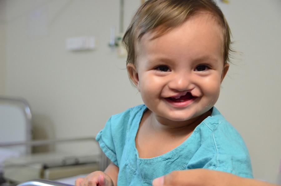 Operação Sorriso realizará 80 cirurgias gratuitas em Fortaleza