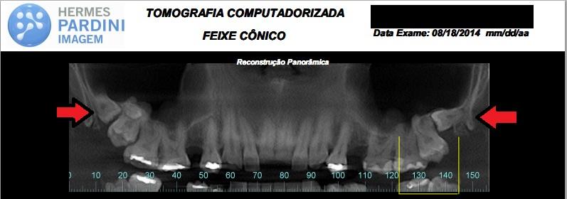 Odontosecção #9 – O paciente com 6 sisos