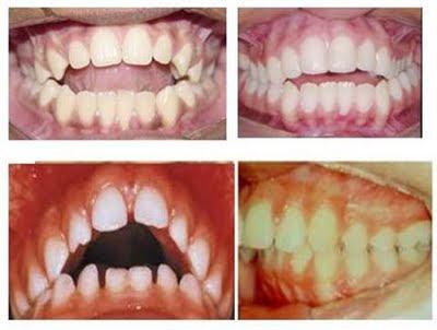 Dente-de-Leite #9 – Respiração Bucal e Rinite Alérgica- Uma relação bem íntima