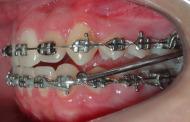 """Ortodontia – O """"X"""" da Questão #5 – APM (Aparelho de Protração Mandibular)"""