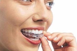 moldeira-clareamento-dental
