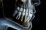 DENÚNCIA: 1/3 dos implantes no Brasil são piratas