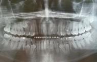 Panorâmica com 39 dentes permanentes