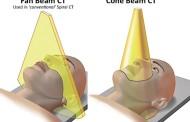30 tons de cinza #2 – Tomografia em Odontologia