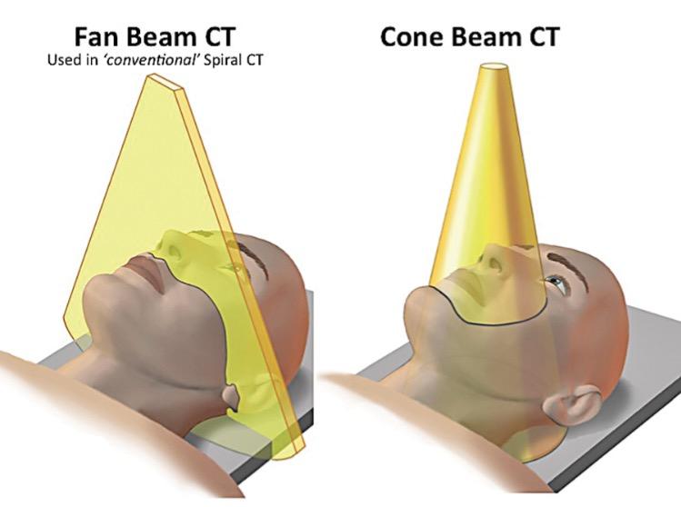 cone_beam_fan_beam