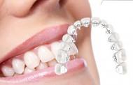 """Ortodontia – O """"X"""" da Questão #10 – Ortodontia Lingual"""