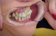 Mulher cola dentes com Super Bonder, por medo de dentista