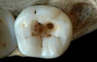 Descoberto o mais antigo registro de exercício da Odontologia