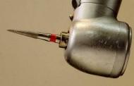 Nanopartículas contra a cárie dentária. Seria o fim do motorzinho ???