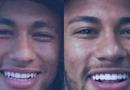 O novo sorriso do craque Neymar